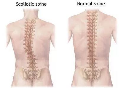 scoliosis curvature of the spine vs. normal spine